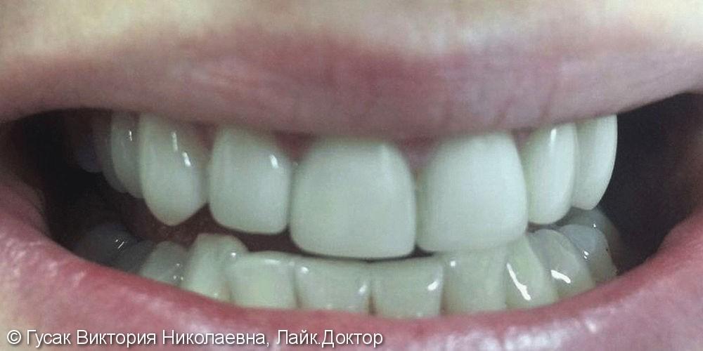 Устранение косметического дефекта и патологической стираемости зубов - фото №2