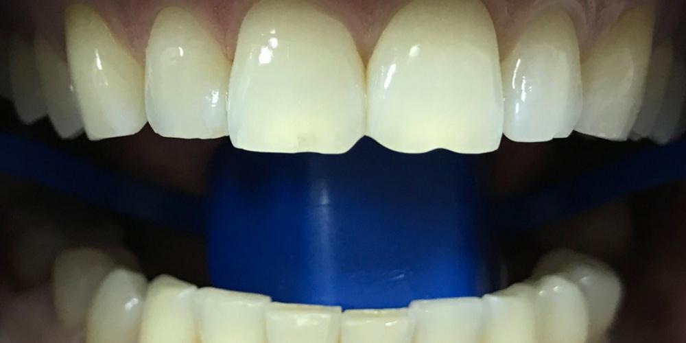Результат отбеливания зубов системой Зум 3 - фото №1