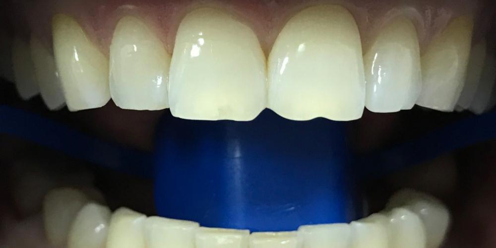 Отбеливание зубов системой ZOOM 3 - фото №1