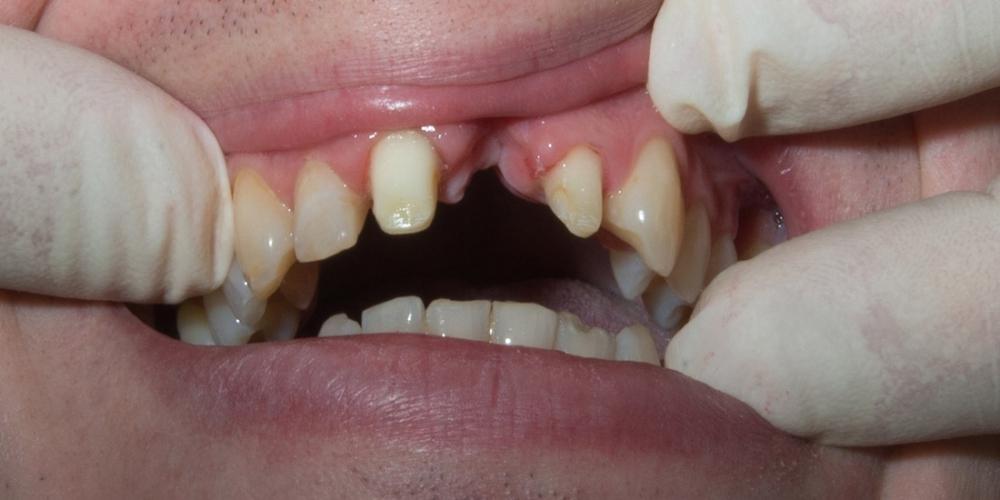 Установка моста из диоксида циркония на передние зубы - фото №1