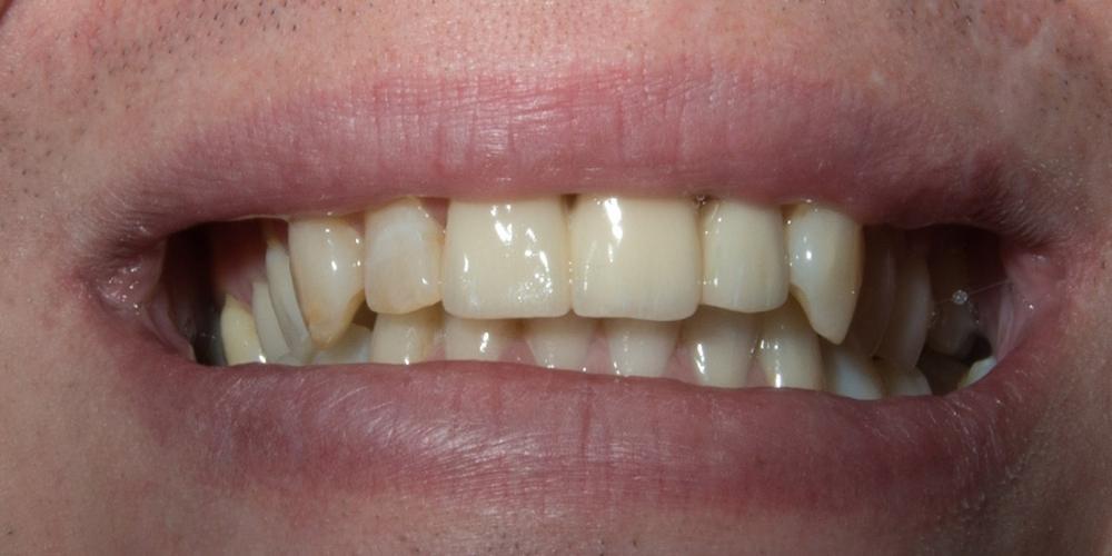 Установка моста из диоксида циркония на передние зубы - фото №2