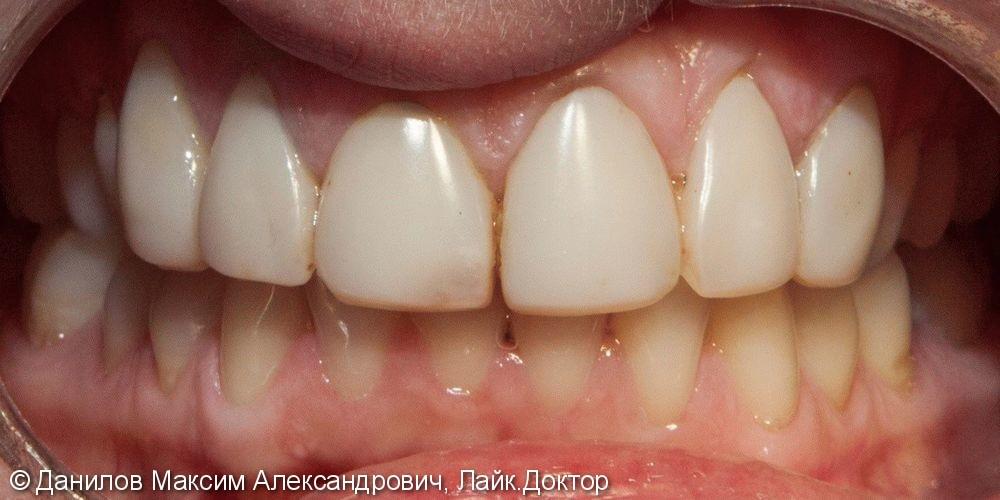 Установка керамических виниров на 8 зубов - фото №1