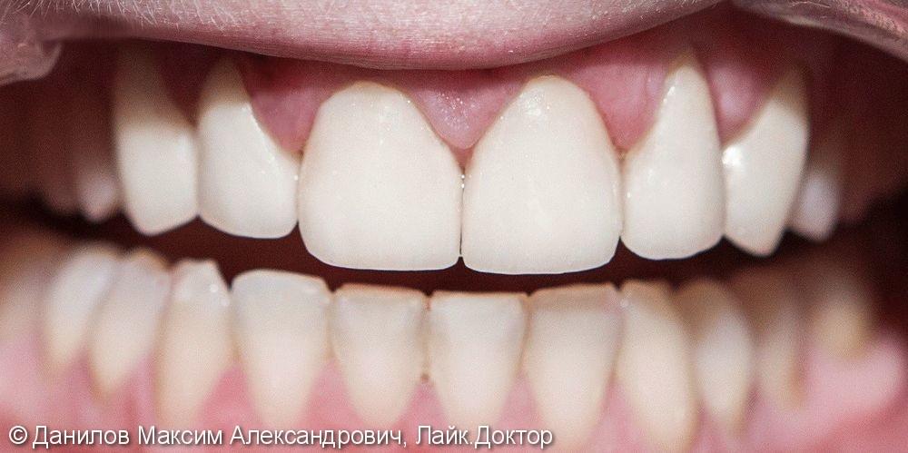 Установка керамических виниров на 8 зубов - фото №2