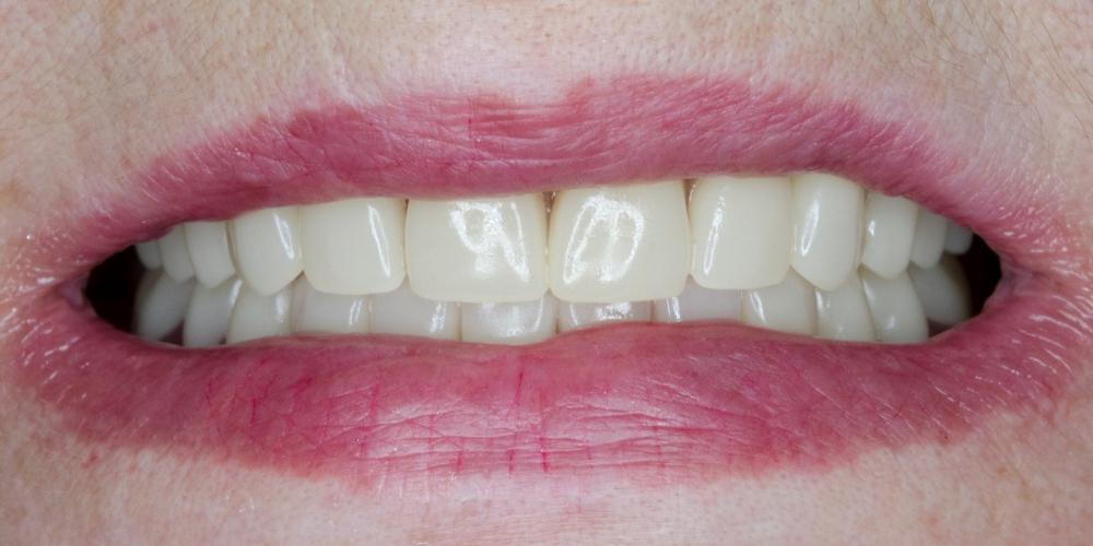 Полное съёмное протезирование верхней и нижней челюсти акриловым протезом - фото №2