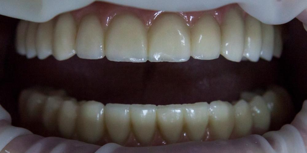 Тотальное протезирование при полном отсутствии зубов - фото №2