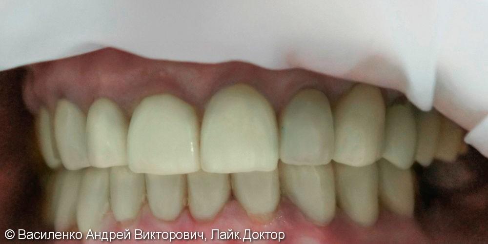 Преображение улыбки с помощью керамических виниров - фото №1