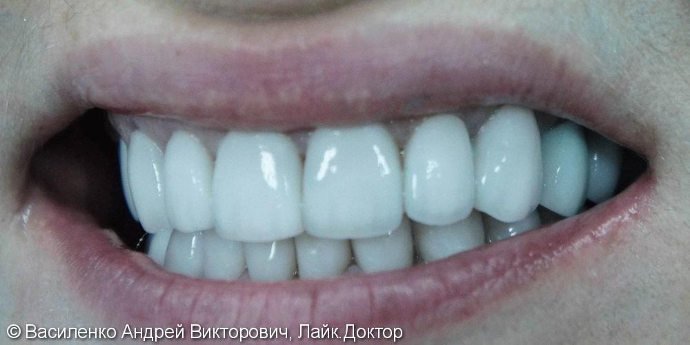 Преображение улыбки с помощью керамических виниров - фото №2