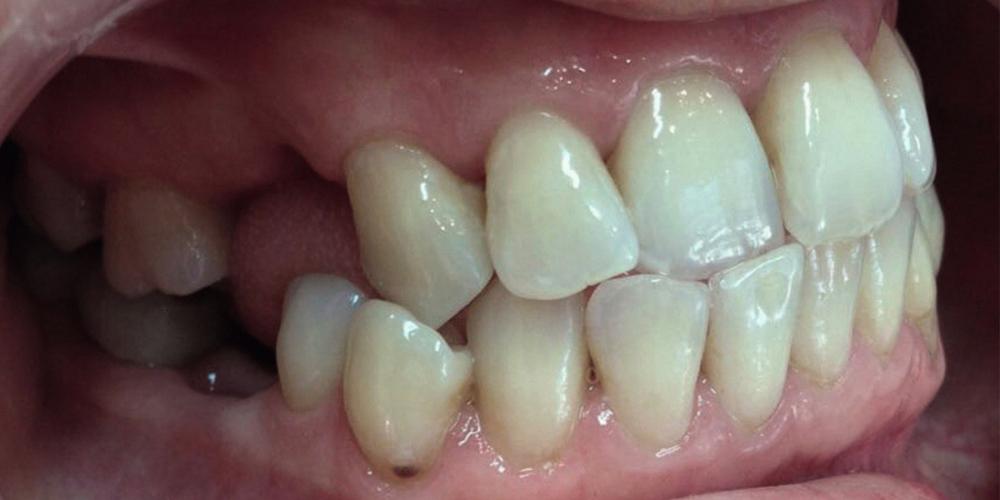 Установка металлической брекет-системы для выравнивания зубного ряда - фото №1