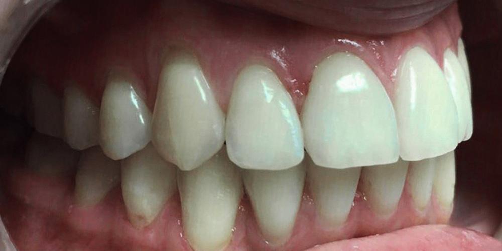 Установка металлической брекет-системы для выравнивания зубного ряда - фото №2