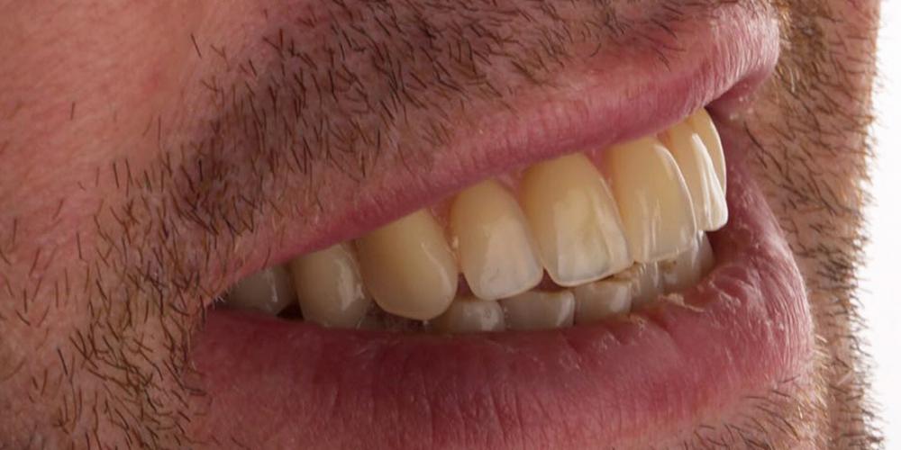 Протезирование зубов на 4 имплантах All-on-4 - фото №2