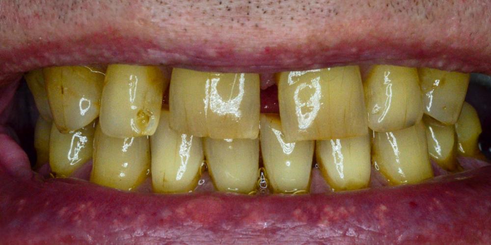 Восстановление зубов с помощью имплантов и керамических коронок - фото №1