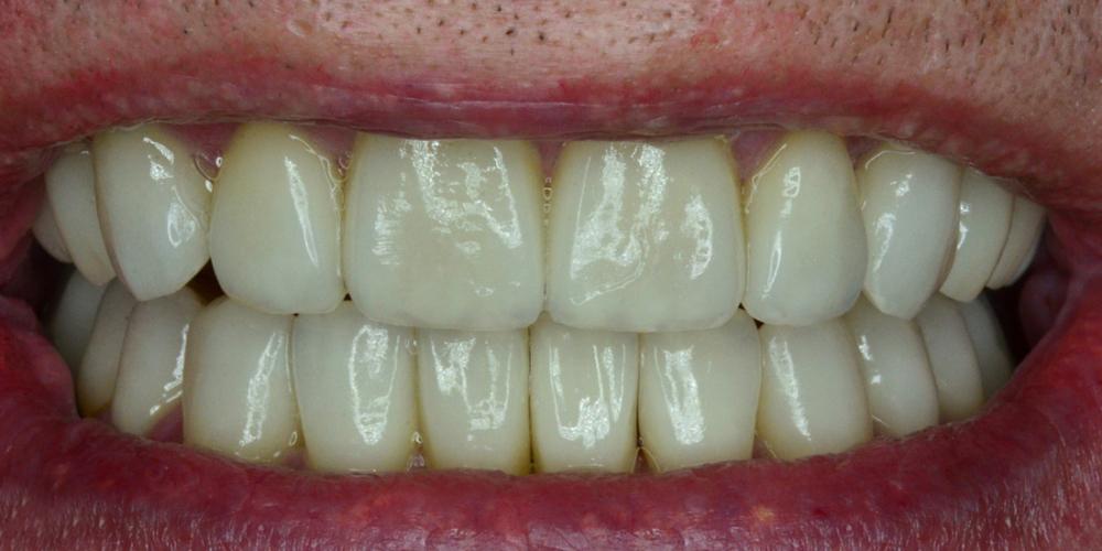 Восстановление зубов с помощью имплантов и керамических коронок - фото №2