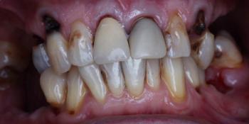 Протезирование зубов на 4 имплантах All-on-4 - фото №1