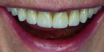 Протезирование верхней и нижней челюсти по технологии All-on-4 - фото №2