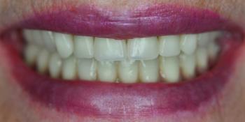 Протезирование всей челюсти по технологии All-on-4 - фото №2