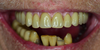 Протезирование верхней челюсти по технологии Все-на-четырех - фото №2