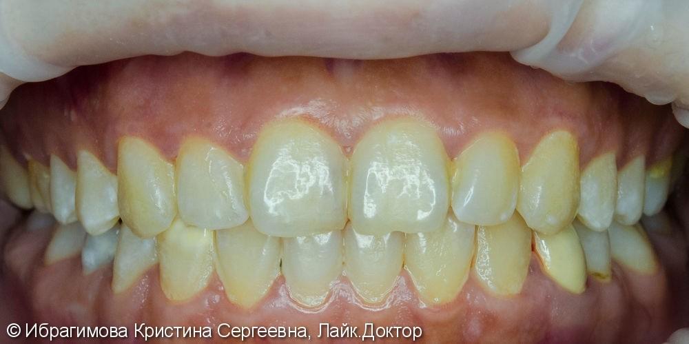 Профессиональная комплексная чистка зубов - фото №1