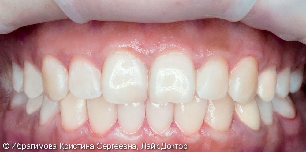 Профессиональная комплексная чистка зубов - фото №2