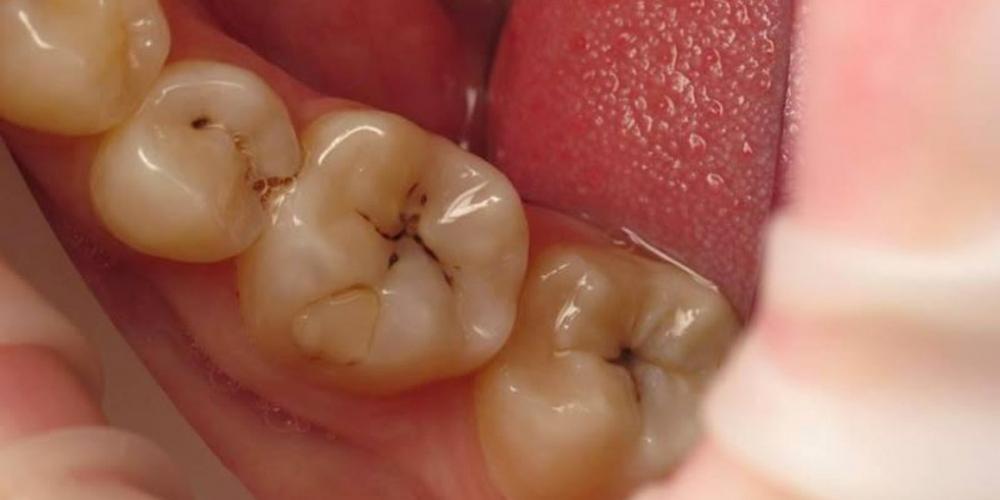 Реставрация двух зубов верхней челюсти - фото №1