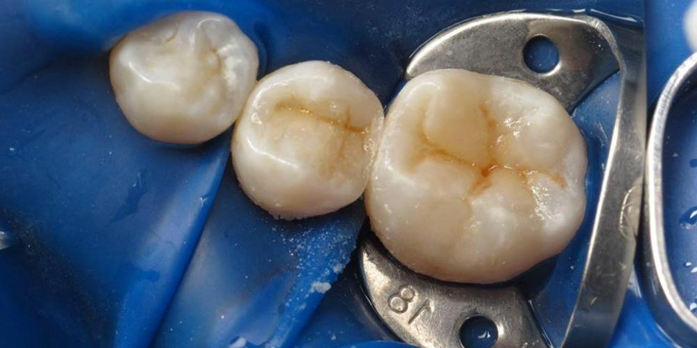 Реставрация двух зубов верхней челюсти - фото №6