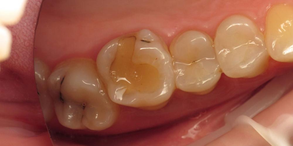 Убрать кариес и старые несостоятельные пломбы и сделать художественную реставрацию трех зубов - фото №1