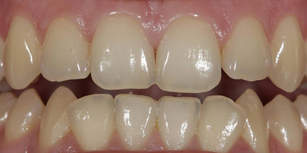 Результат отбеливания зубов ZOOM, решение проблемы дисколорита зубов - фото №1