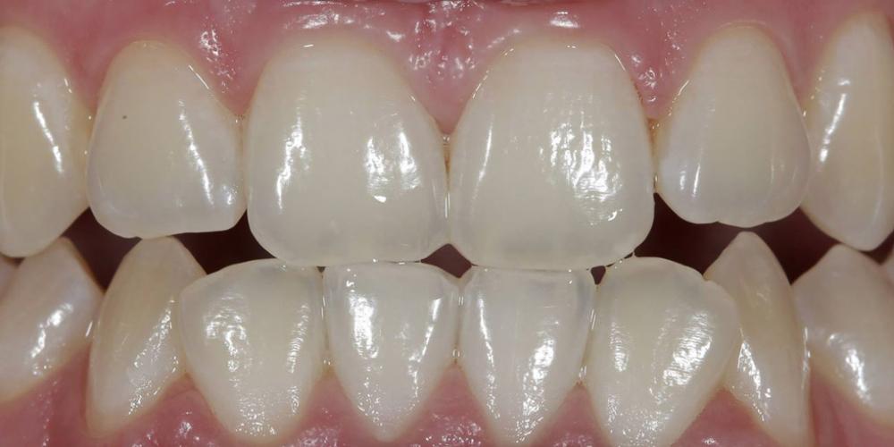 Результат отбеливания зубов ZOOM, решение проблемы дисколорита зубов - фото №2