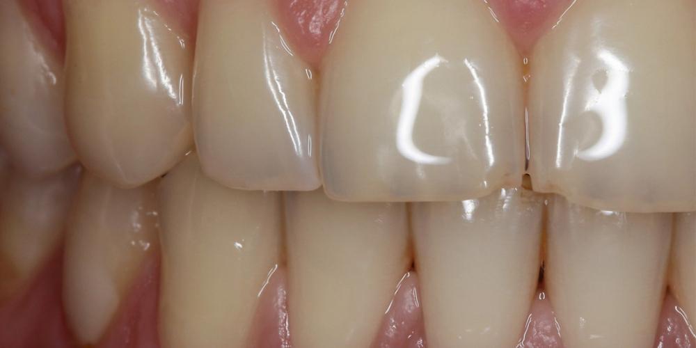 Отбеливание зубов системой отбеливания Zoom 3 - фото №1