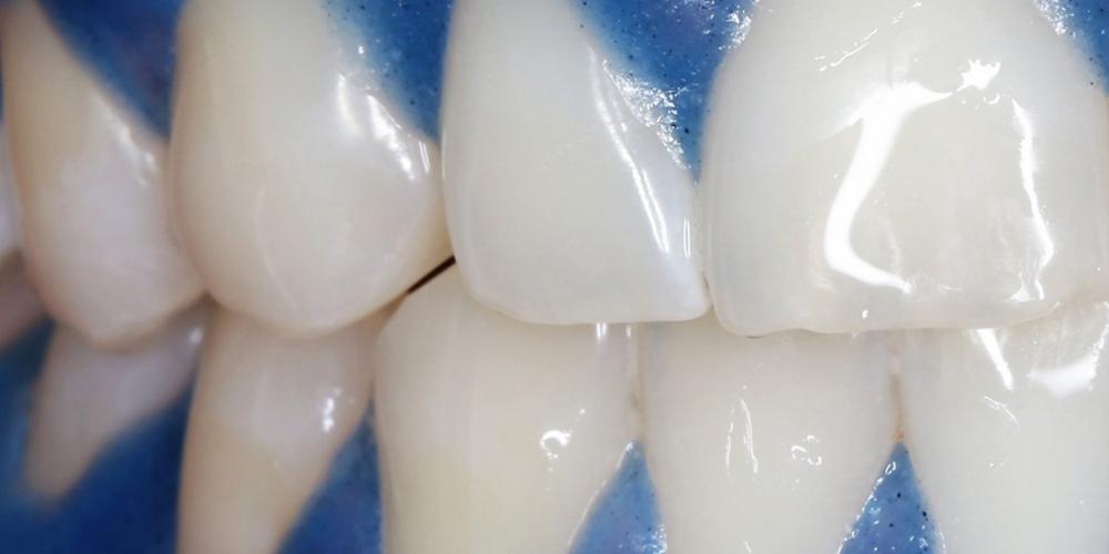 Отбеливание зубов системой отбеливания Zoom 3 - фото №2