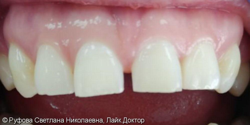 Эстетическая реставрация фронтальных зубов - фото №1