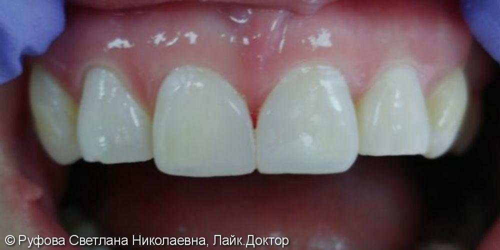 Эстетическая реставрация фронтальных зубов - фото №2