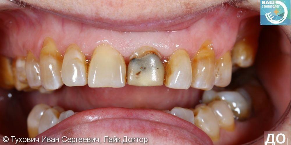 Реставрация фронтального зуба - фото №1