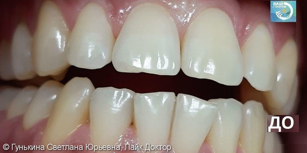 Отбеливание зубов - фото №1