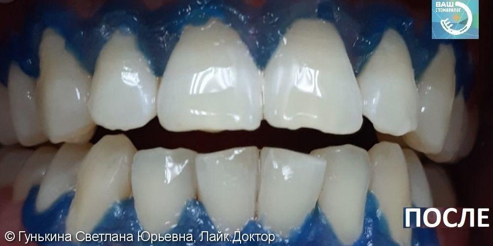 Отбеливание зубов - фото №2