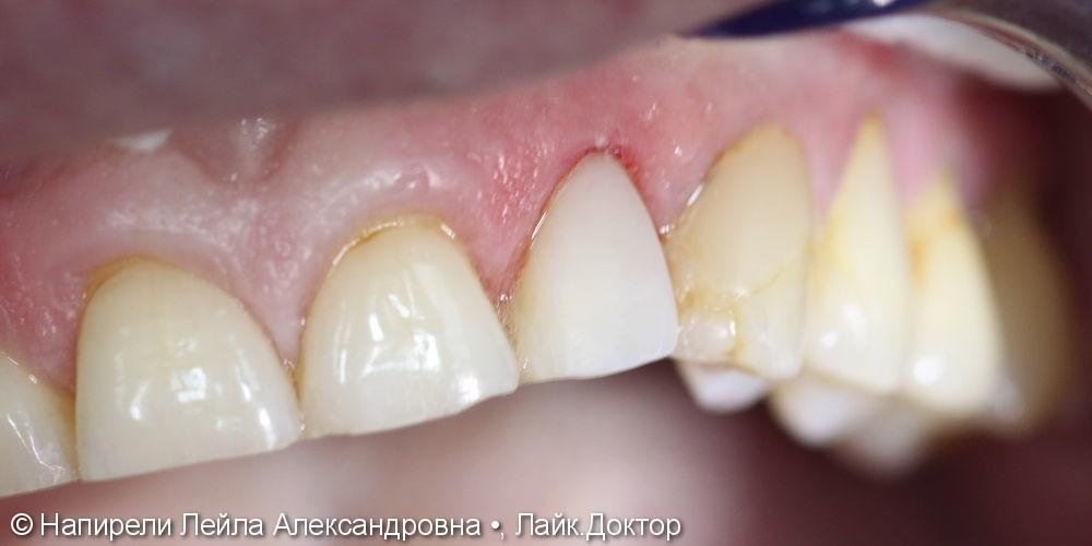 Эстетическая реставрация 22 зуба, до и после - фото №2