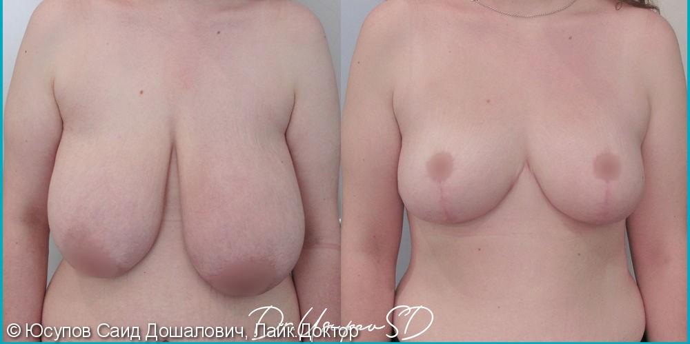 Редукционная мастопексия - фото №1