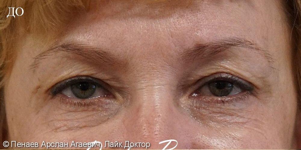 Блефаропластика верхних и нижних век, результат через 2 года до и после - фото №1