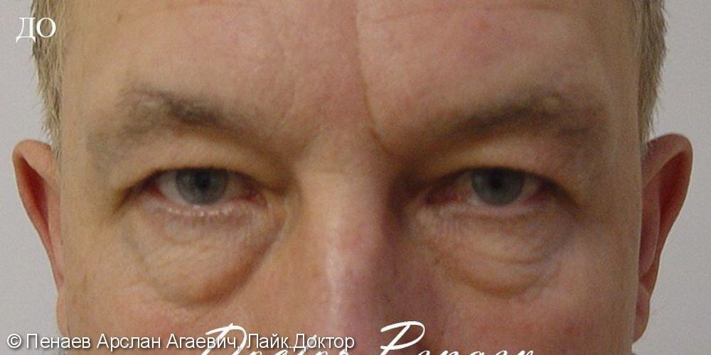 Блефаропластика верхних и нижних век у мужчины 55 лет, до и после - фото №1