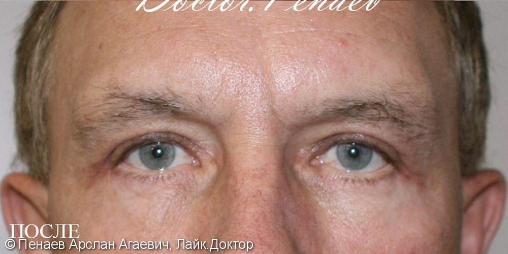 Блефаропластика верхних и нижних век у мужчины 55 лет, до и после - фото №6