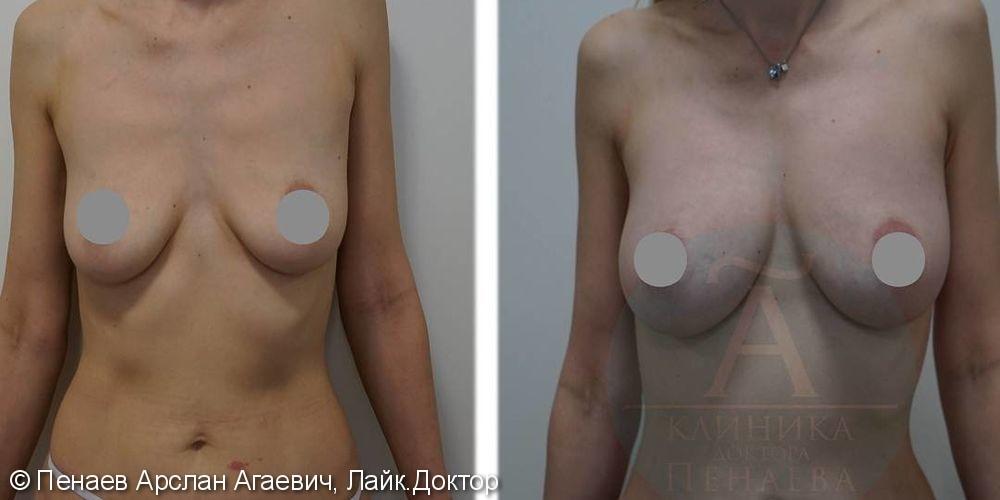 Липофилинг груди, подтяжка грудных желез, до и после операции - фото №1