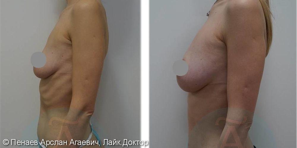 Липофилинг груди, подтяжка грудных желез, до и после операции - фото №2