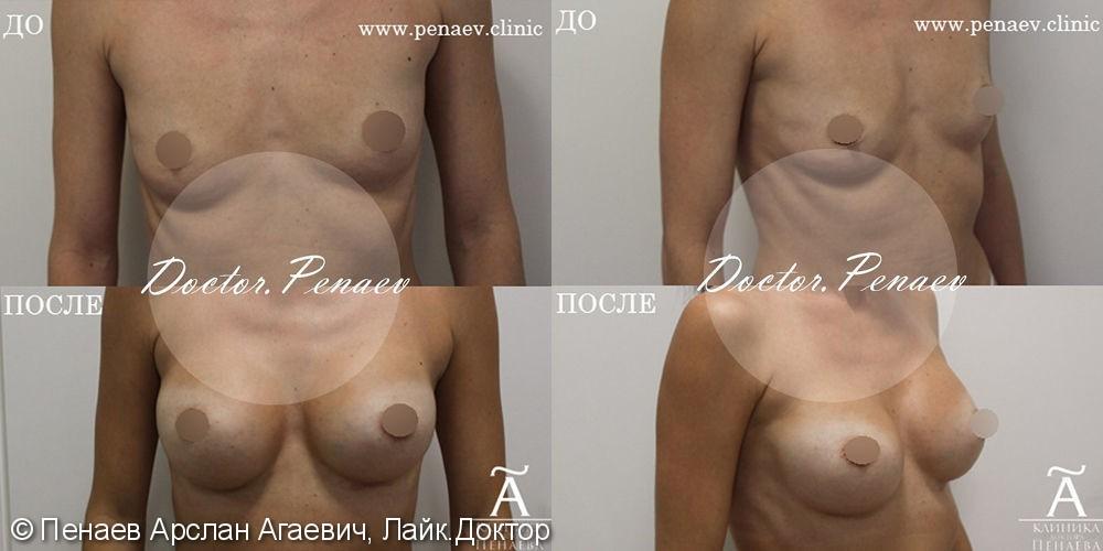 Протезирование анатомическими имплантами, объем имплантата 295 мл - фото №1