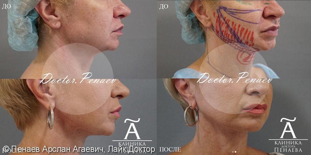 Подтяжка лица - фото №1