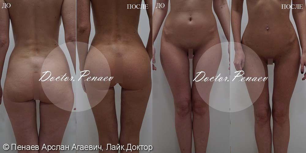 Липотрансфер ягодиц, до и результат после - фото №1