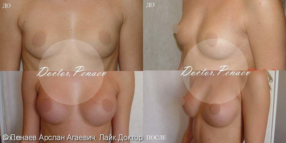 Протезирование груди имплантами, до и после - фото №1