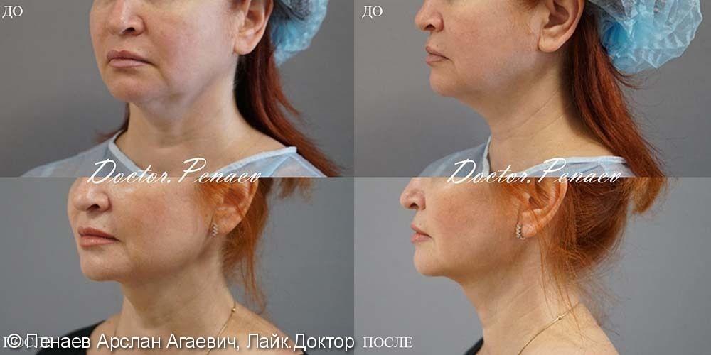 Лифтинг лица, до и после - фото №1