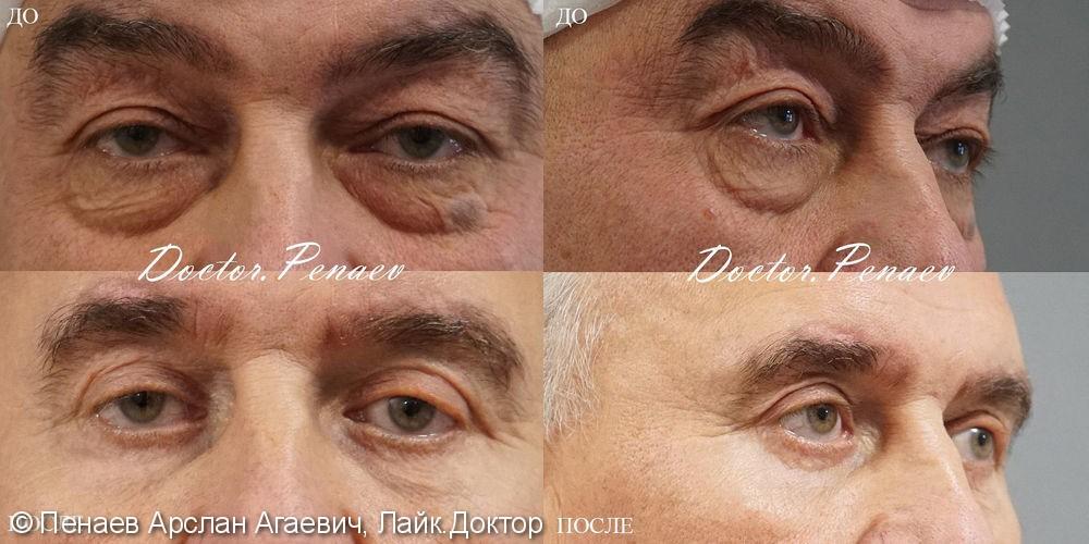 Мужская блефаропластика - фото №1
