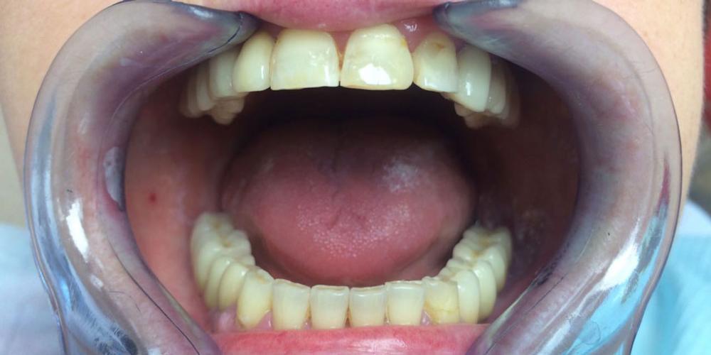 Восстановление зубов на верхней и нижней челюстях вживлением 11 имплантов - фото №5