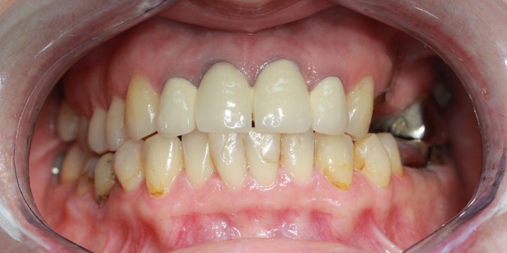 Восстановление жевательных зубов имплантацией ICX и протезированием - фото №1