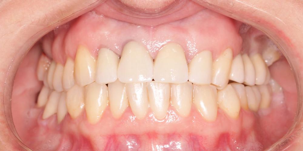 Восстановление жевательных зубов имплантацией ICX и протезированием - фото №2